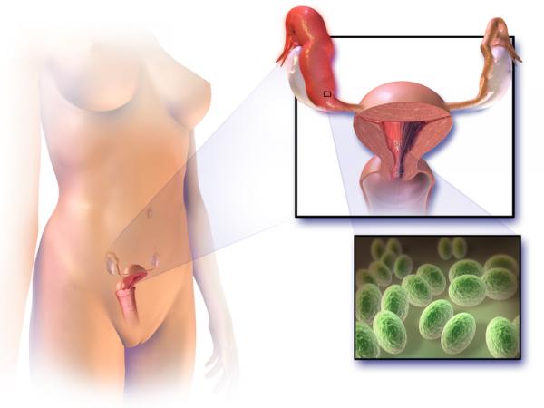Вагинальный кандидоз: симптомы и лечение
