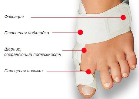 Фиксатор для косточки на ноге применение отзывы