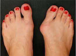 Удаление шишек на ногах, лечение косточек на ноге ...