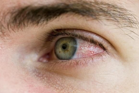 раздражение глаз демодекоз