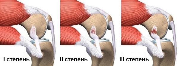 Надрыв связок коленного сустава лечение