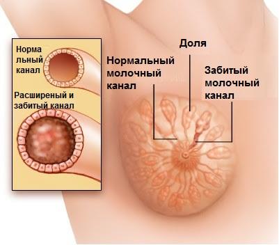 лактостаз