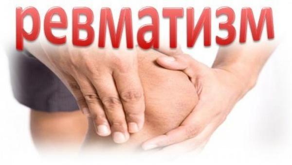 Что такое ревматизм суставов и чем опасна эта болезнь