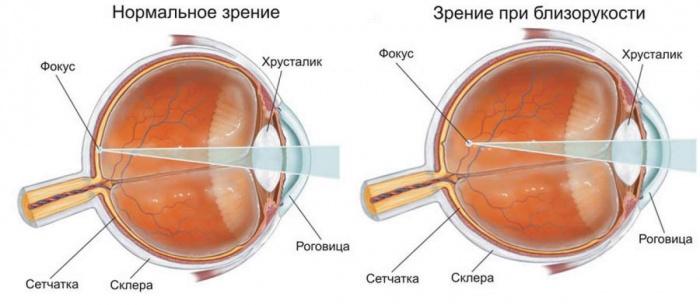 глаз при миопии