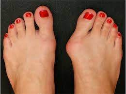 Валюфикс отзывы врачей можно ли купить в аптеке от шишек на ногах